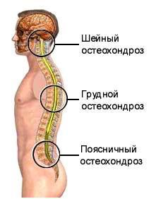 Metode de tratare a remediilor folclorice de osteocondroză, dovedită de secole