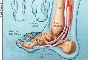 inflamația genunchiului ce trebuie făcut brusture pentru durere în articulația genunchiului