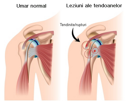 simptome de leziuni la umăr