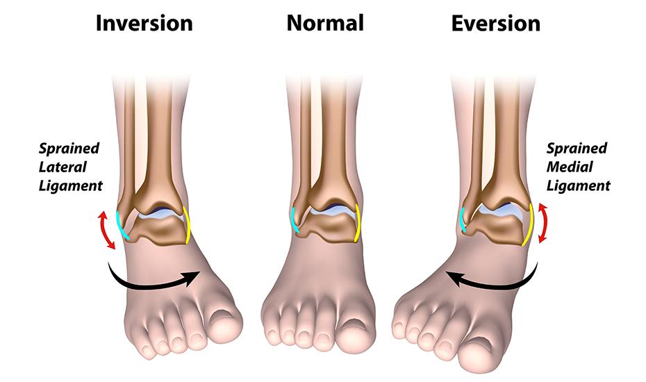 Tratamentul artrozei de gradul 2 al articulației gleznei - Artroza gleznei tratament 2 grade