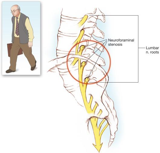 Mieloza funiculară a durerilor articulare