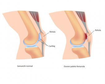 Dureri de genunchi la bicicliști, De ce ma dor genunchii cand pedalez?