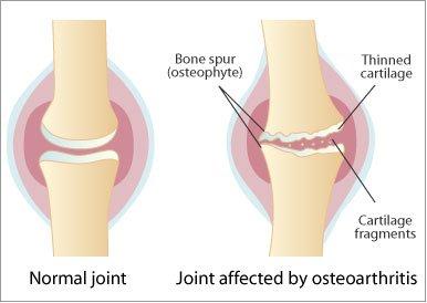 poate răni articulațiile din bere toate articulațiile doare deodată