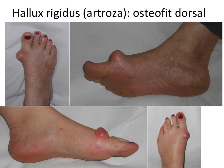 Artroza piciorului cu tratament de deformare