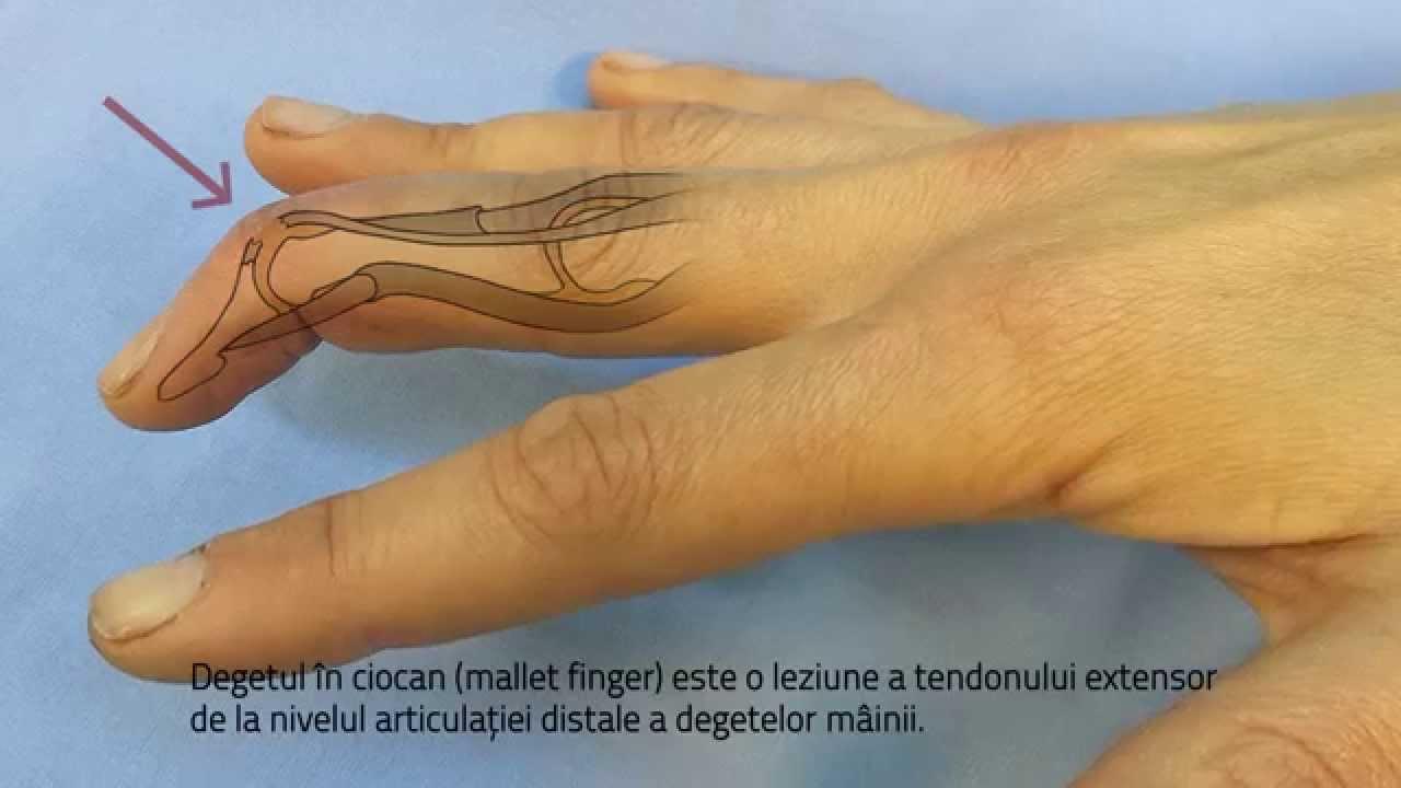 umflarea articulației pe degetul mijlociu