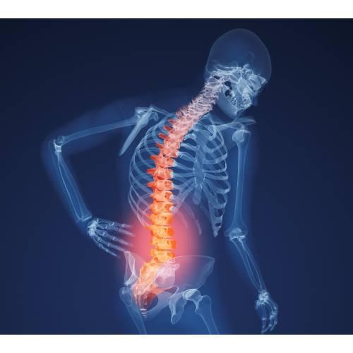 boli purulente ale chirurgiei oaselor și articulațiilor