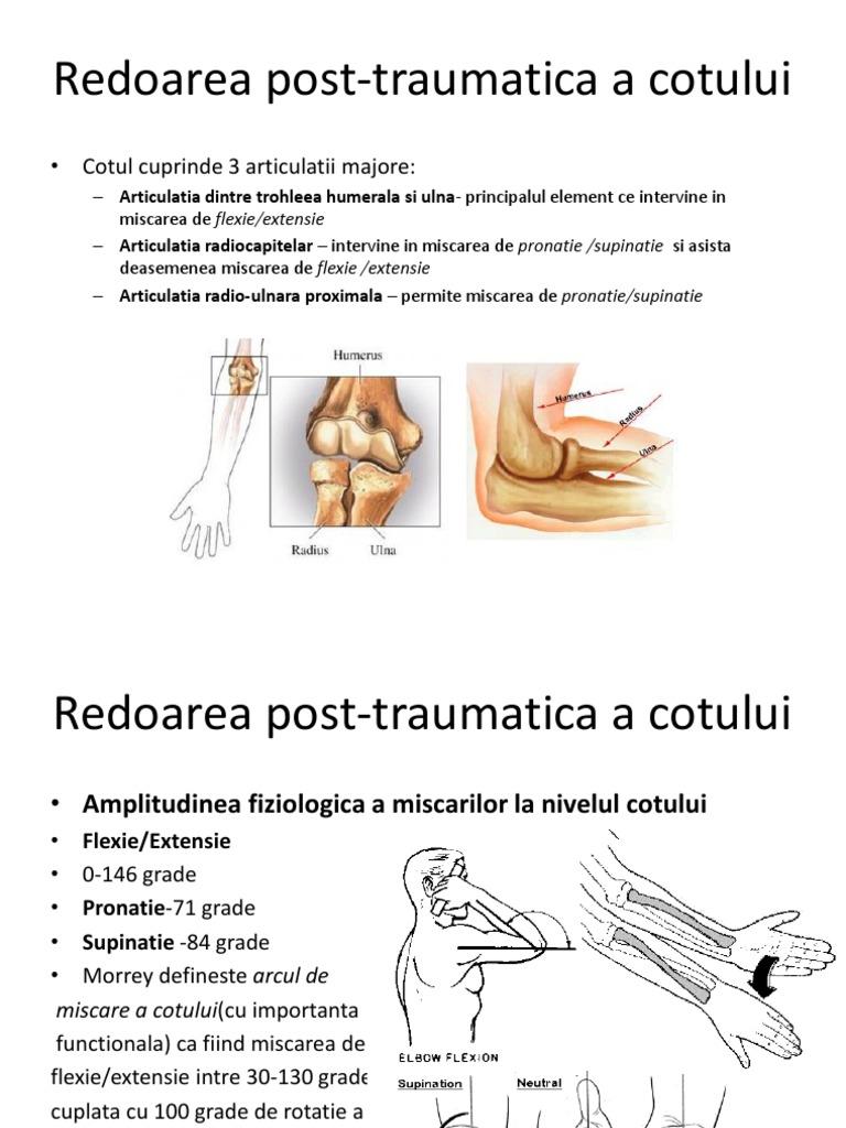 Artroza articulației cotului cu 3 grade ce trebuie făcut, Cauza artrozei articulației cotului