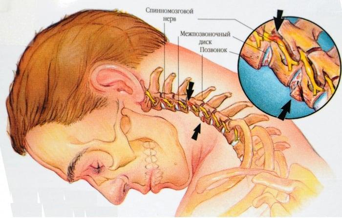 Medicamente pentru osteochondroza toracică cervicală, Meniu cont utilizator