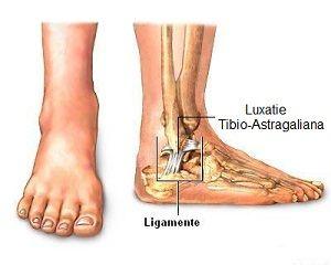 Leziunile gleznei | Ottobock RO - Zona externă a articulației gleznei doare