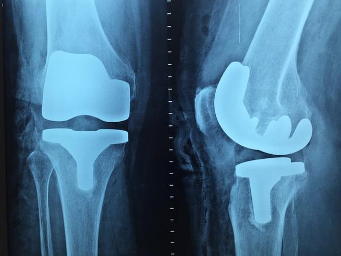 cum să îndoiți un genunchi într-o articulație cum să amelioreze umflarea cu artrita degetelor