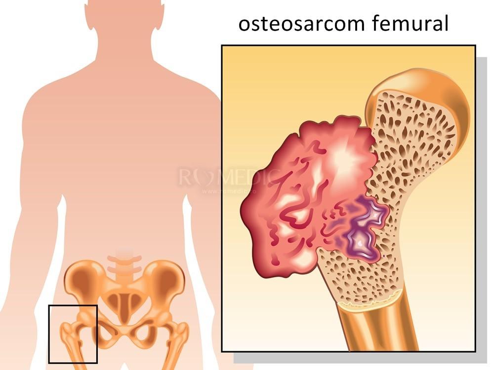 Artroza șoldului – ce este, diagnostic și tratament
