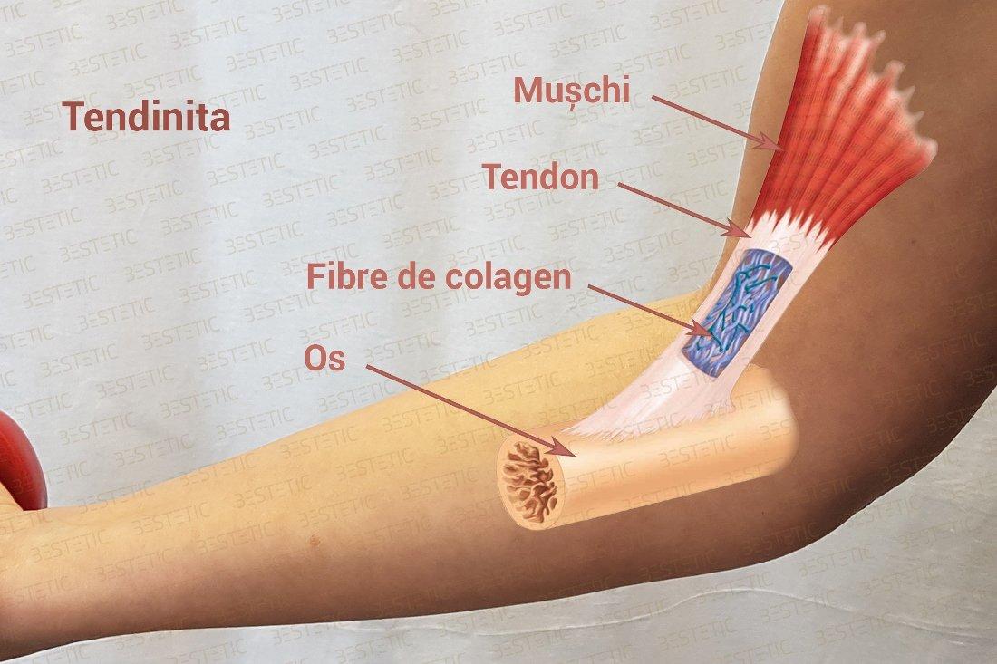 durere de tendon unguent umflat la genunchi