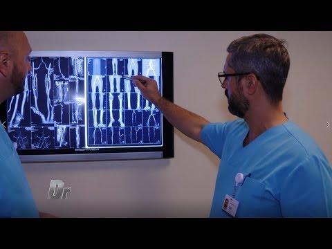 artroza deformantă de primul grad al articulației umărului dureri la nivelul genunchiului și articulațiilor gleznei