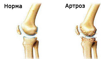 artroza cronică a genunchiului drept