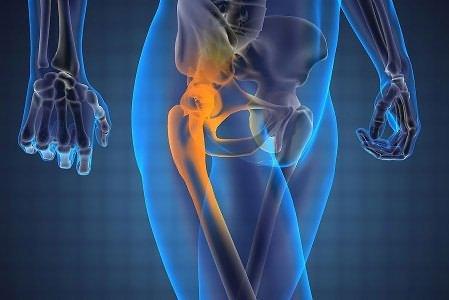 Bursita Șoldului: Simptome, Terapie 💊 Științifico-Practic Medical Journal -