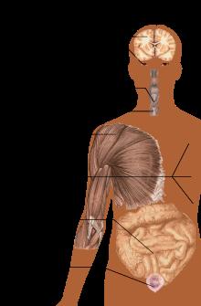 Scleroza sistemica