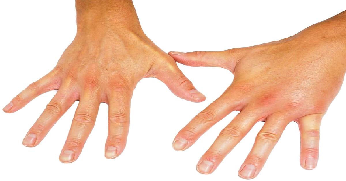 markeri ai bolilor articulare autoimune