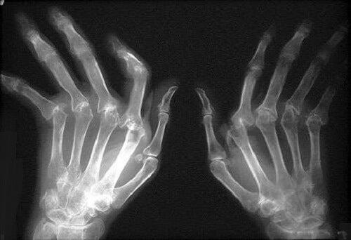 tratamente cu artrita artroza forum cum să tratezi durerile articulare