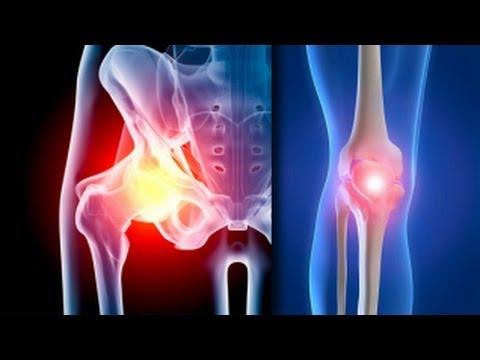 Dr Efimenko privind tratamentul artrozei care este cauza bolii de șold