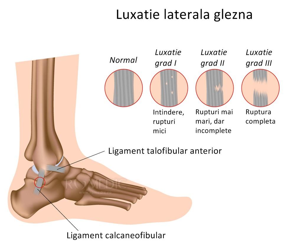 tratament pentru luxația articulației gleznei