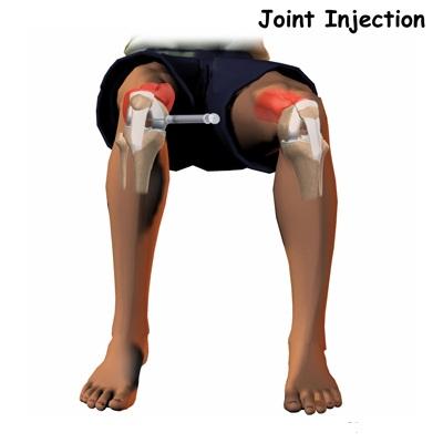 Tratamentul cu artroză plasmatică a genunchiului