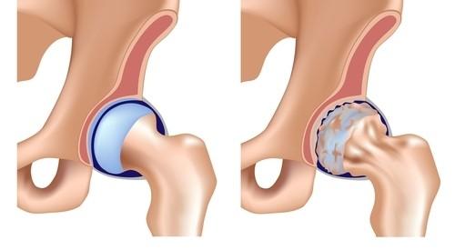coxartroza tratamentului articulației șoldului teraflex tratament cu sodă pentru dureri de genunchi