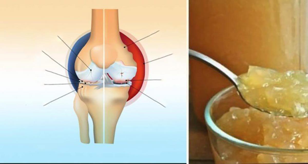 genunchii crunch tratarea cu azot lichid cu artroză