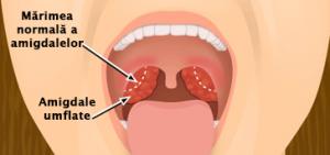 dureri articulare datorate amigdalelor