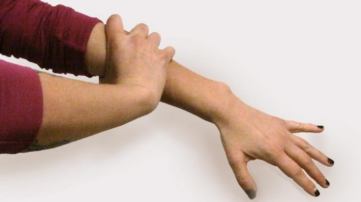 articulația în mâna stângă doare