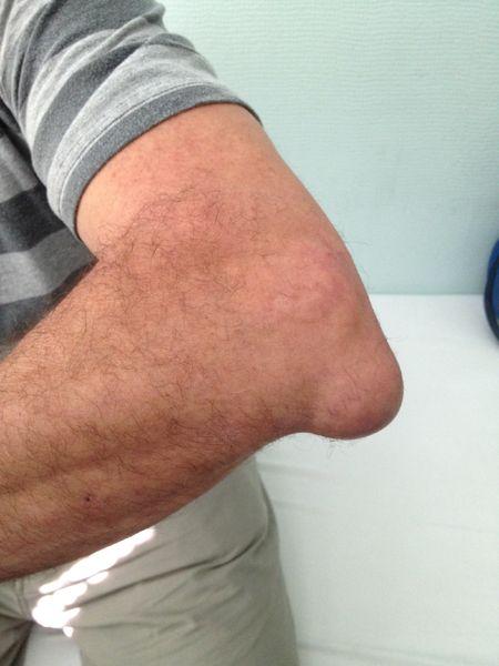 tratamentul osteomielitei cotului Nu alerg din cauza durerilor articulare