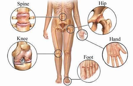 artroza tuturor articulațiilor