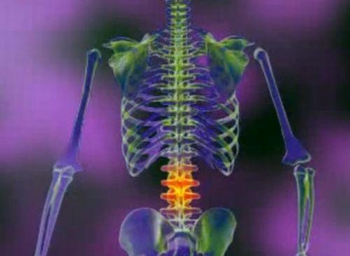 dureri de șold cu hernie lombară