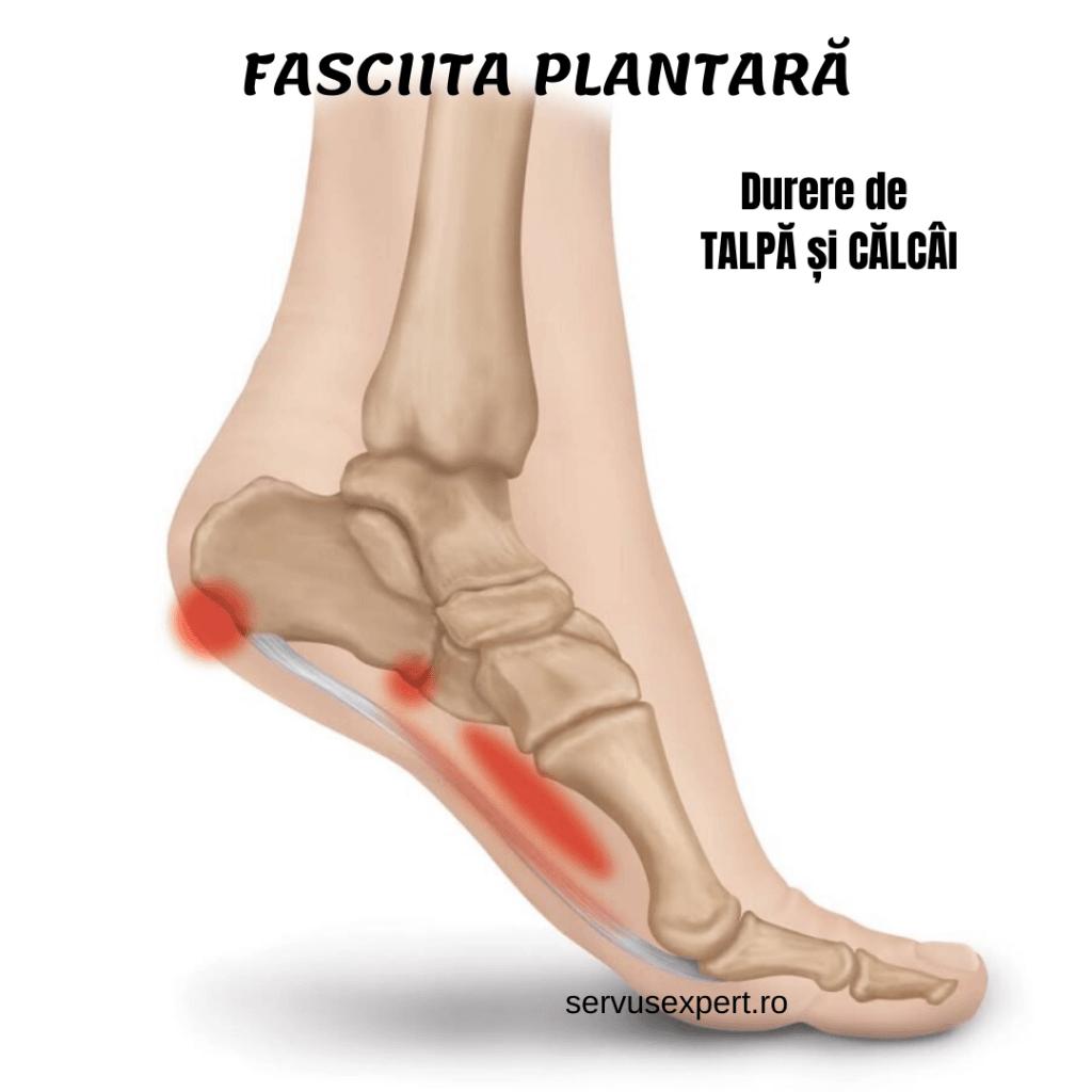 dureri la nivelul picioarelor în articulația călcâiului piciorului