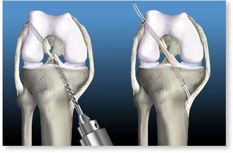 ruperea ligamentului cruciat al genunchiului