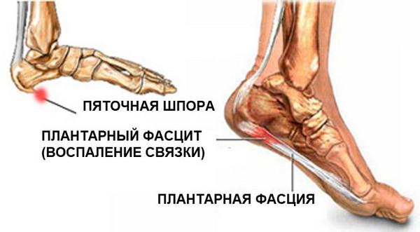 Timpul cum să ușureze durerea artritei în brațe