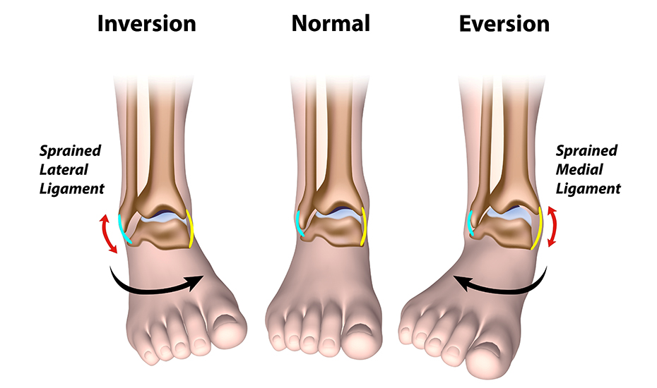 Tratament cu ultrasunete cu artroza piciorului