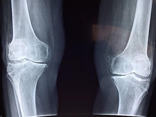 artrita metabolica a genunchiului