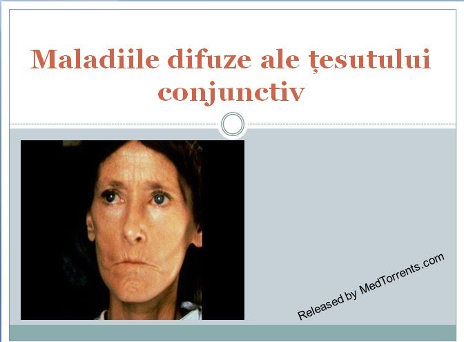 recenzii ale bolilor țesutului conjunctiv capsule teraflex pentru tratamentul bolilor articulare