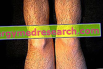 simptomele artritei reumatoide ale genunchiului
