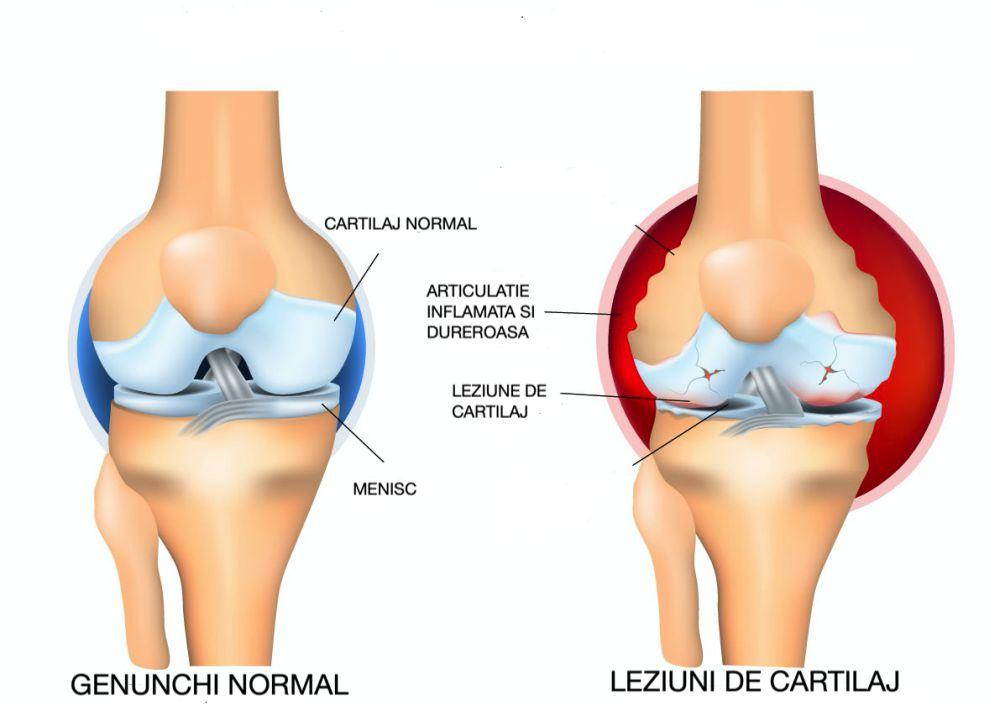 diagnosticul de leziuni la genunchi
