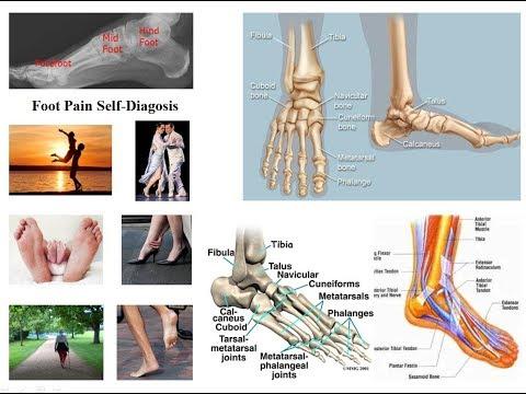 Tarsus articulația metatarsică doare
