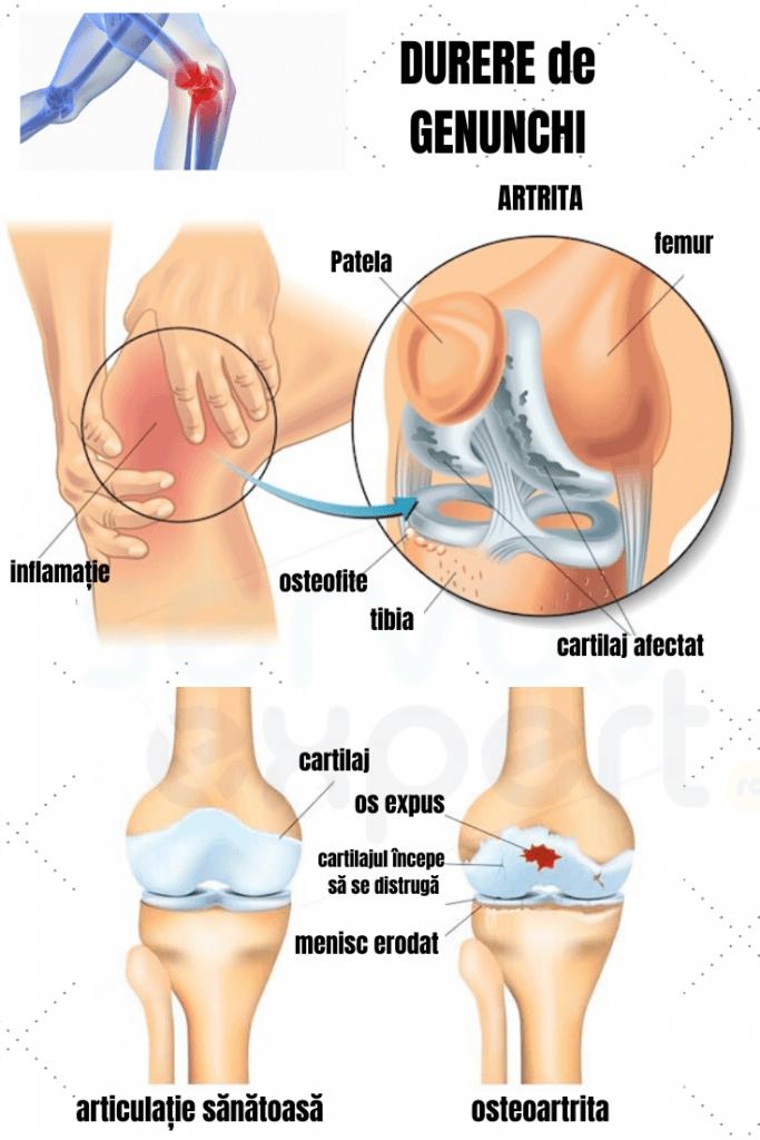 Dureri dureroase la genunchi