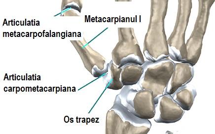 denivelări apoase rănesc articulațiile tratament dureros la nivelul gleznei
