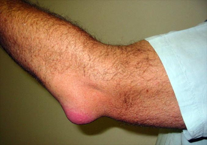tratamentul cu gelatină dureri articulare tratamentul meniscului genunchiului cu unguente