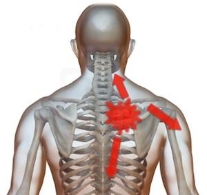 Durere în partea din spate a omoplatului stâng