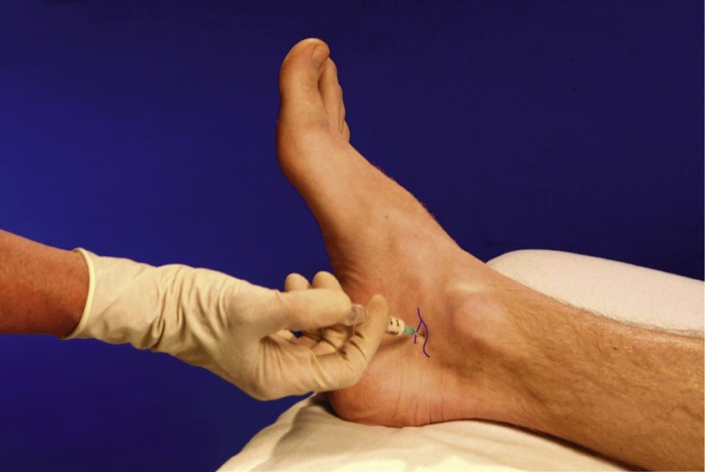 dureri articulare severe la strănut care tratează articulațiile genunchiului