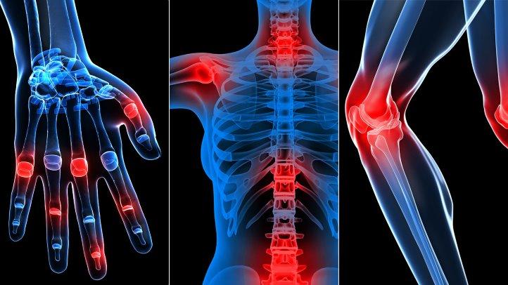 cum să tratezi artroza coloanei toracice