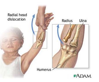 articulația cotului stâng doare