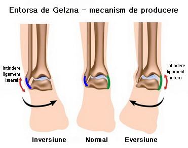 articulația umflată pe picior