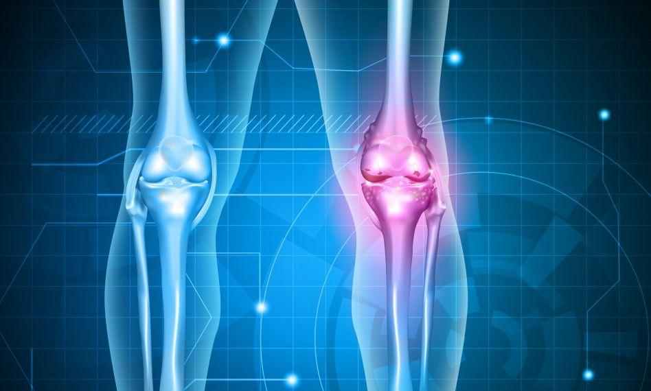 deteriorarea genților genunchiului